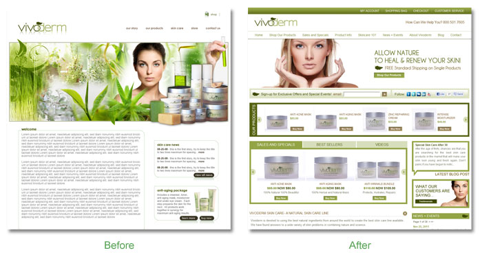 vivoderm Before and After